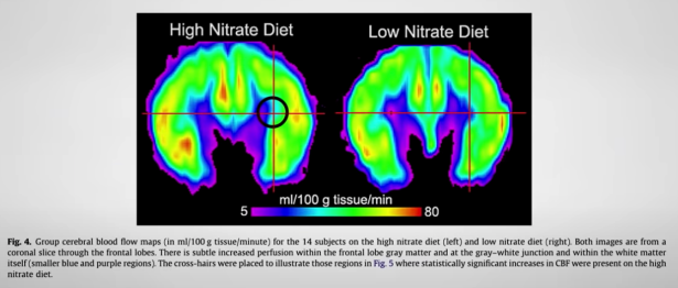 invloed van groene bladgroenten op de hersenen